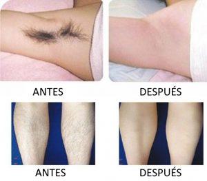 depilacion-laser-ANTES-DESPUES