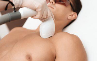 Ventajas de la depilación láser